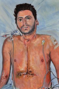 Self-Portrait 'One Week After My Heart Transplant' by Brian Keeley