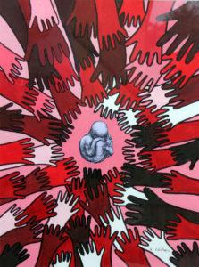 Psychosis by Anthony Milner