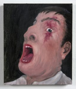 Man With Birthmark by Michael Hayter