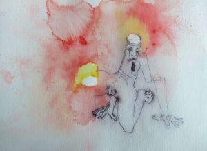 Phantom limb pain by John Taylor