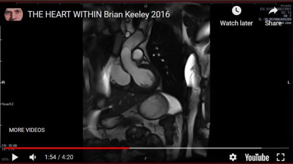 The Heart Within by Brian Keeley 2020